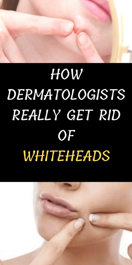 How Dermatologists Really Get Rid Of Whiteheads