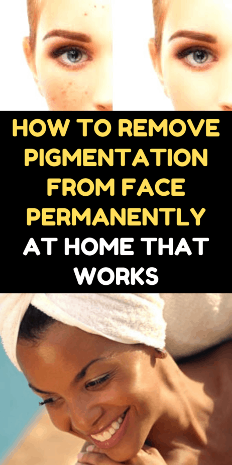 How To Remove Pigmentation From Face Permanently At Home That Works