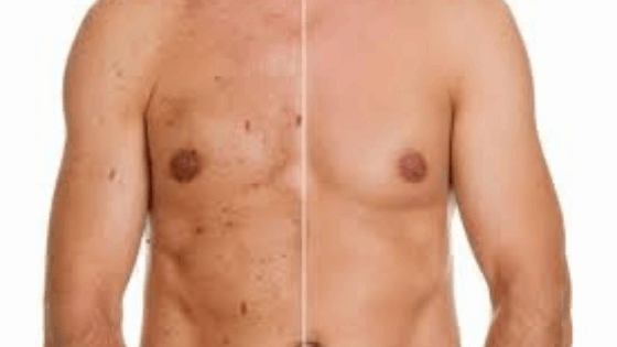 7 Common Causes Of Chest Acne And How To Treat It